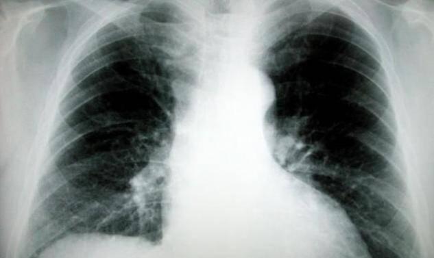 Ο καρκίνος του πνεύμονα αναπτύσσεται 20 χρόνια πριν εκδηλωθεί