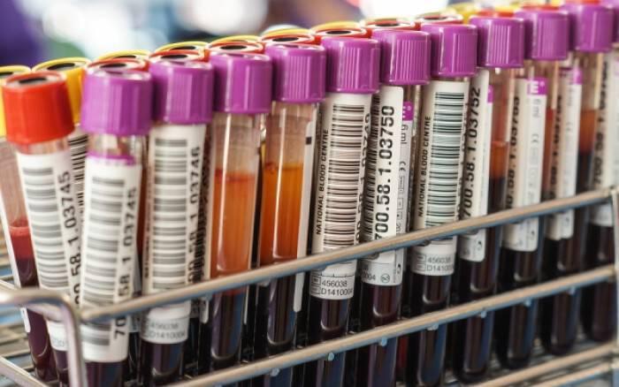 Αυξημένες τρανσαμινάσες: Ποια προβλήματα υγείας δείχνουν