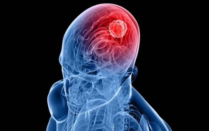 Καρκίνος εγκεφάλου: Τα ροφήματα που μειώνουν κατά 34% τον κίνδυνο