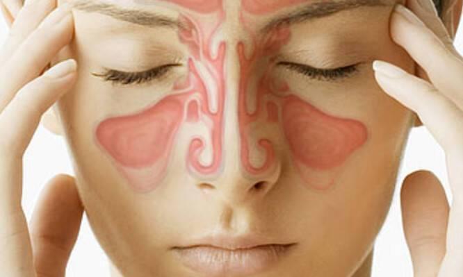 Ιγμορίτιδα: Πόσο διαρκεί – Τι να κάνετε για πονοκέφαλο και μπούκωμα