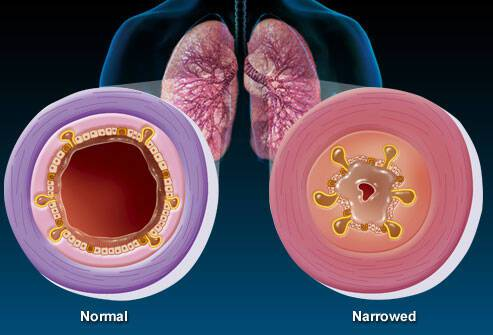 Βρογχίτιδα: Αίτια, συμπτώματα, επιπλοκές, μέθοδοι αντιμετώπισης και πρόληψης