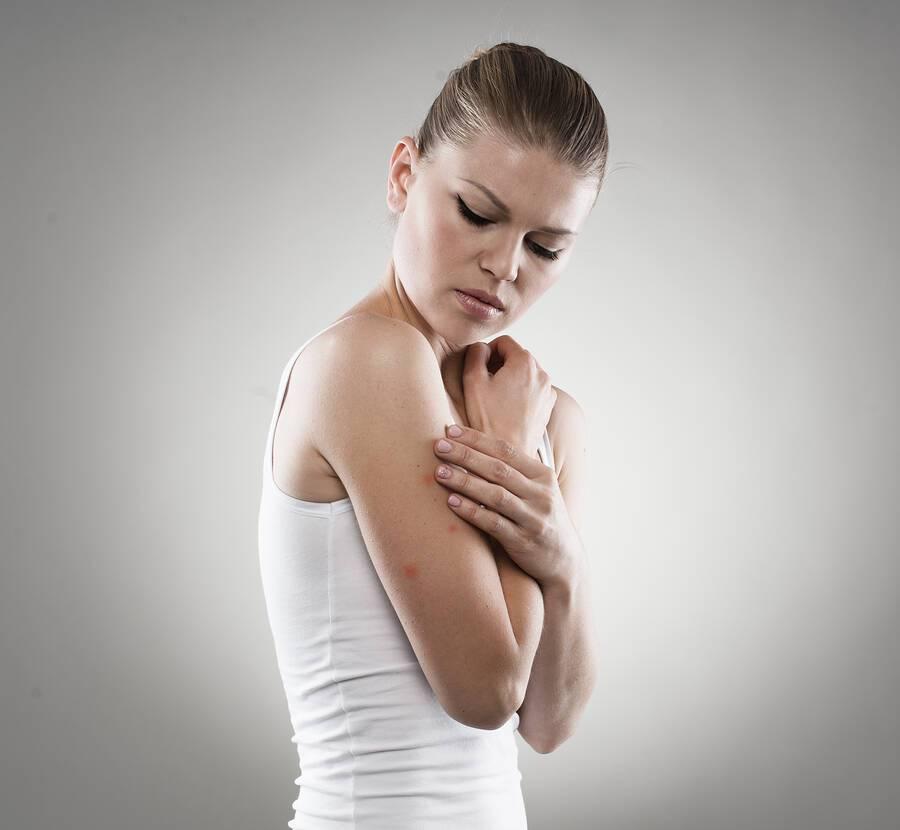 Κνίδωση: Αιτίες και αντιμετώπιση
