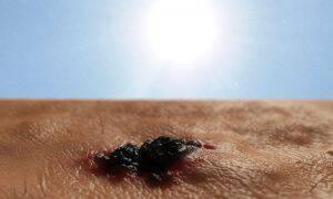 bigstock-Skin-cancer-73656772