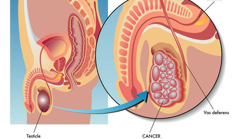 Καρκίνος των όρχεων: Τα προειδοποιητικά συμπτώματα!!!