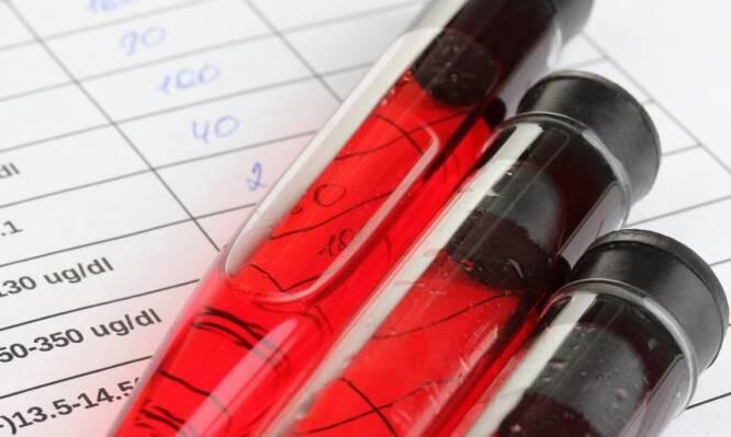 Αιματοκρίτης: Τι σημαίνει όταν είναι υψηλός και τι όταν είναι χαμηλός
