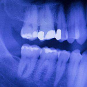 bigstock-Dental-Teeth-Filling-Dentists-121304813