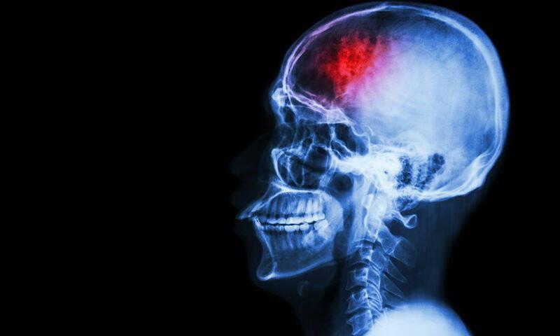 bigstock-Stroke-cerebrovascular-acci-78569471