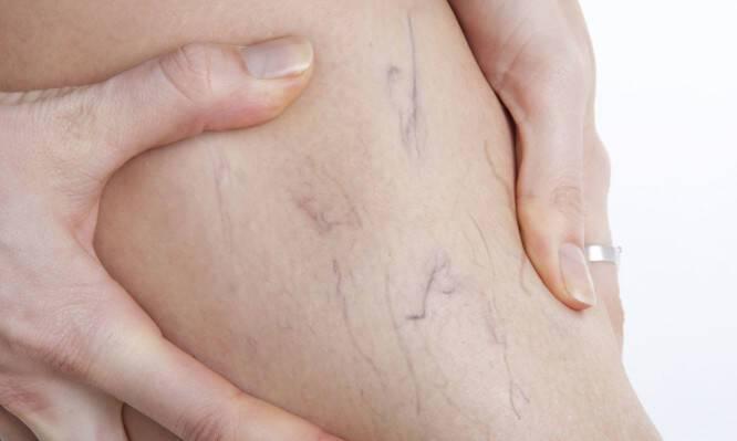 Αντιμετώπιση των κιρσών με την πλέον ανώδυνη θεραπεία