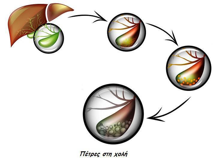 Πέτρες στα νεφρά vs. πέτρες στη χολή: Συμπτώματα & αντιμετώπιση
