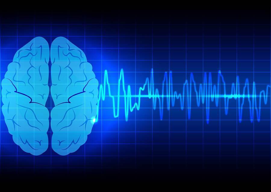 Έμφραγμα vs. εγκεφαλικό: Πώς θα τα ξεχωρίσετε