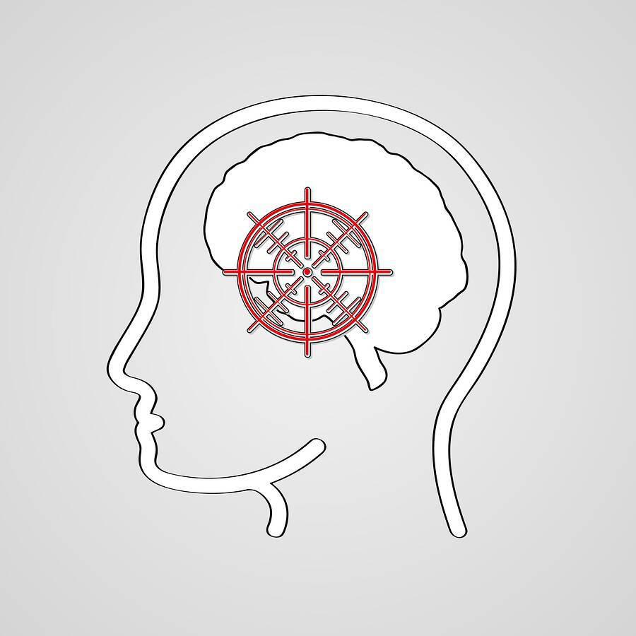 Εγκεφαλικό: 9 ασυνήθιστα συμπτώματα που εκδηλώνουν οι γυναίκες