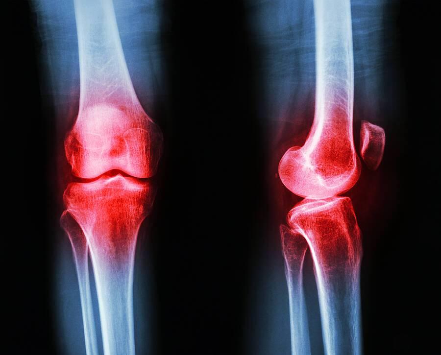 Πόνοι στα γόνατα: Κοινά προβλήματα και η αντιμετώπισή τους