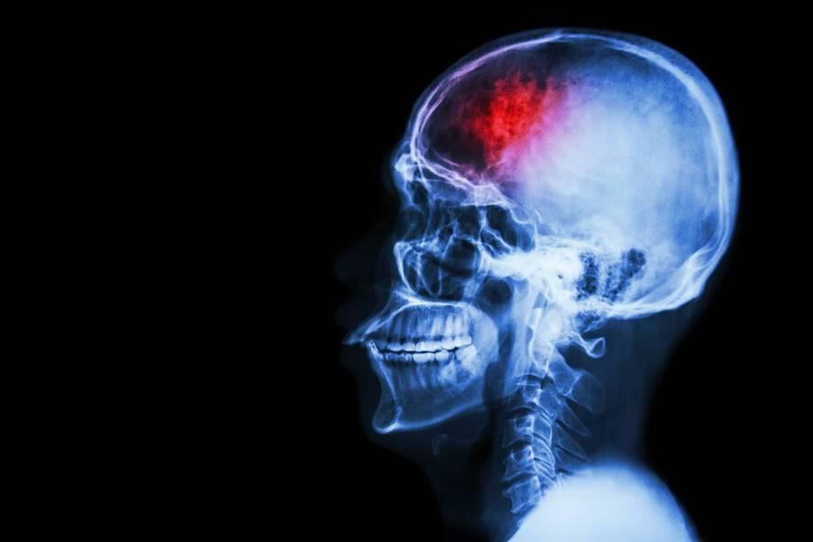Ισχαιμικό εγκεφαλικό επεισόδιο: Δύο παράγοντες που πολλαπλασιάζουν τον κίνδυνο