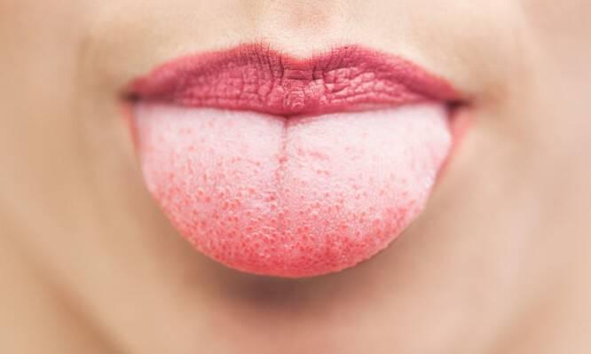 Λευκή γλώσσα: Γιατί συμβαίνει – Πότε πρέπει να σας ανησυχήσει