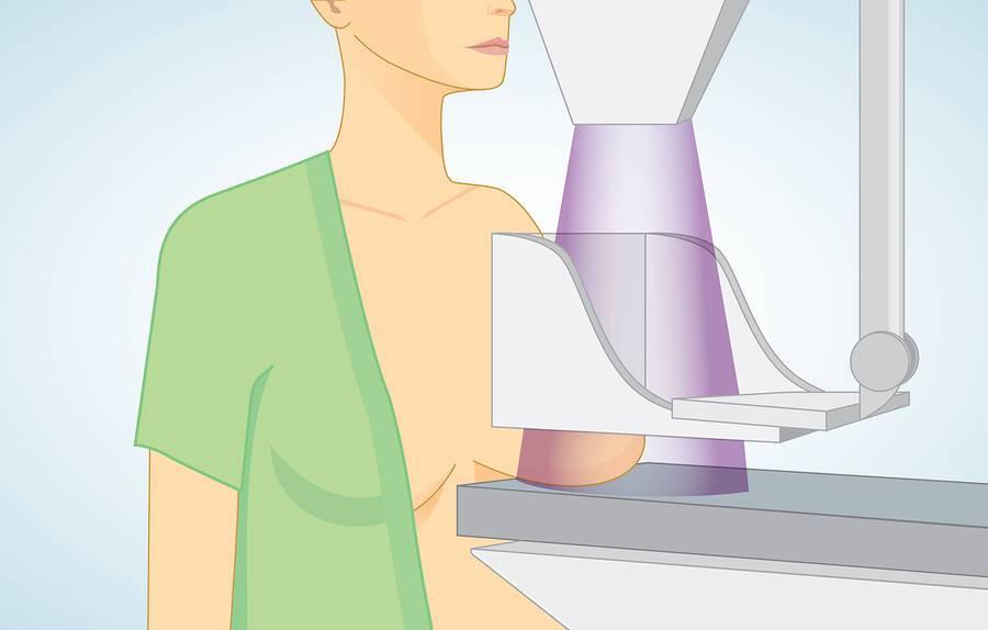 Εξογκώματα στο στήθος: 5 πιθανές αιτίες
