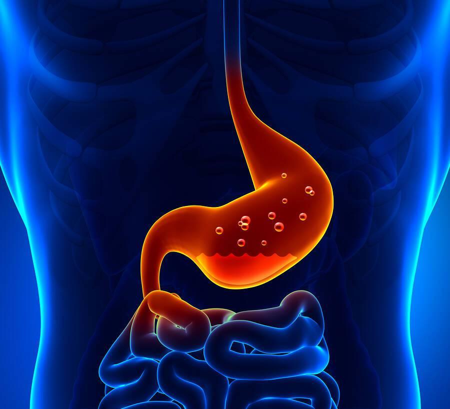 Οισοφαγίτιδα: Ποιες είναι οι σοβαρές επιπλοκές