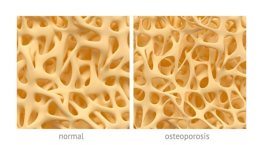 Διαβήτης: Οι επιπτώσεις του στην υγεία των οστών