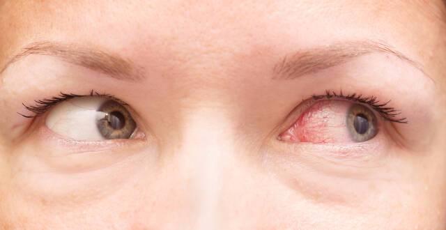 Κοκκίνισμα ματιών: Ποιες οι πιθανές αιτίες και τι πρέπει να κάνετε