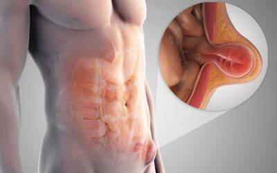 Κήλη: Τι είναι, αίτια, θεραπεία και χειρουργική επέμβαση