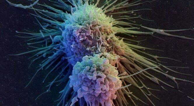 Αυξημένος κίνδυνος θανάτου για τους καρκινοπαθείς από τις εναλλακτικές θεραπείες