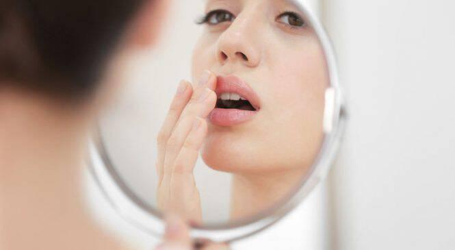 Άφθες στο στόμα: Τι τις προκαλεί, πώς θα τις αντιμετωπίσετε